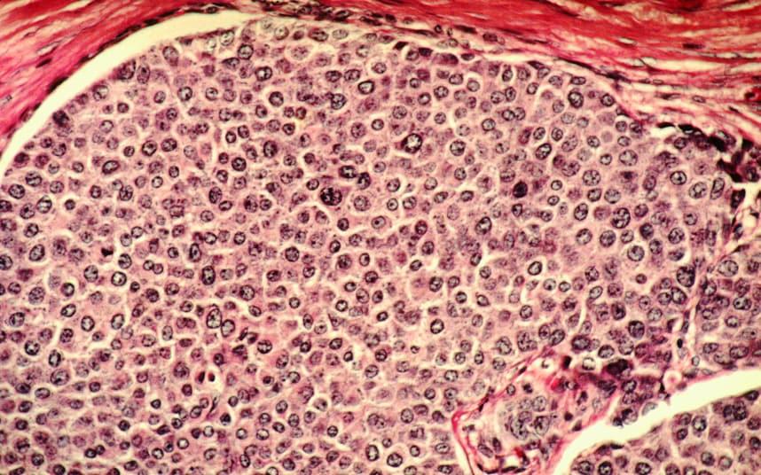 «Кровавый лазер» покажет врачам, где спрятались опухоли