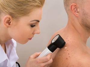 Эффективный препарат от меланомы успешно прошел испытание