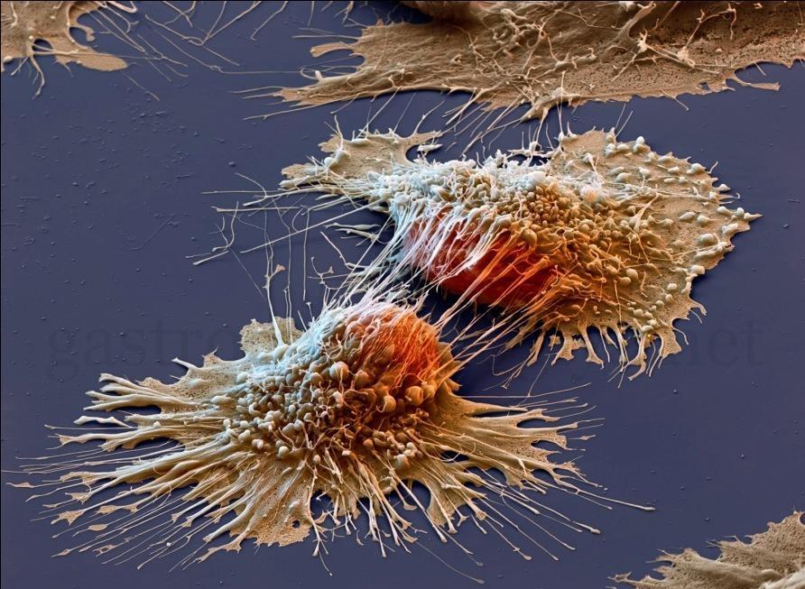 Ученые нашли эффективный способ борьбы с раком