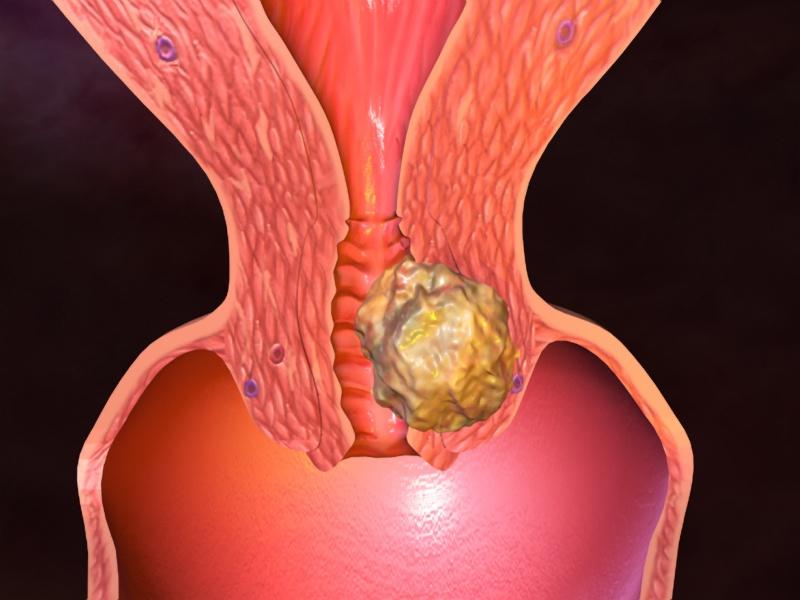 Рак шейки матки вызывают вирусы папилломы