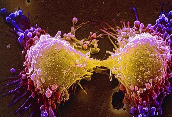 Ученые рассказали, почему рак поражает одни органы чаще других