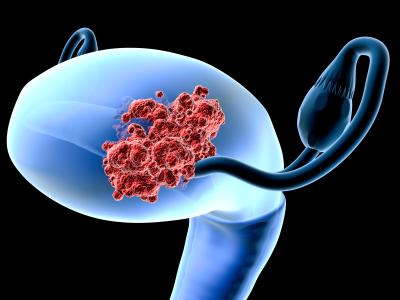 Гормональная внутриматочная система экономически эффективна в предупреждении развития рака эндометрия у женщин с ожирением
