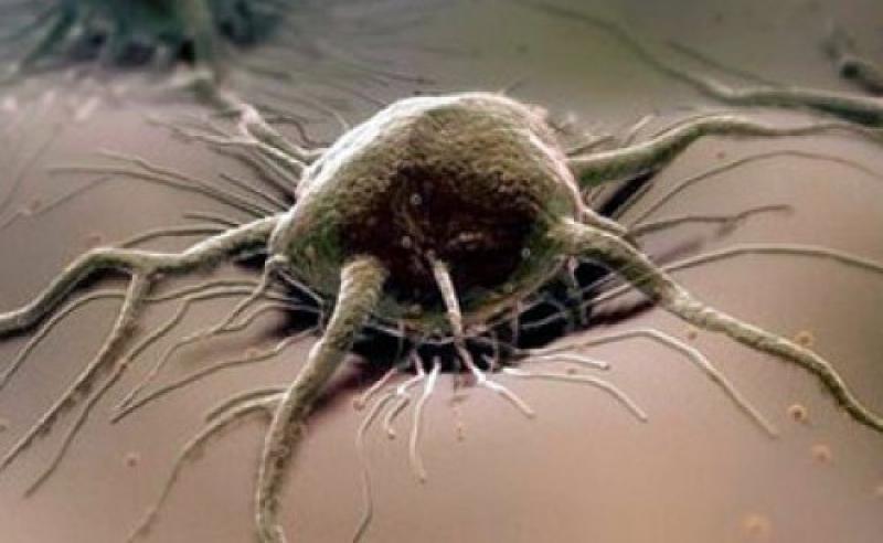 От сосиски до раковой опухоли
