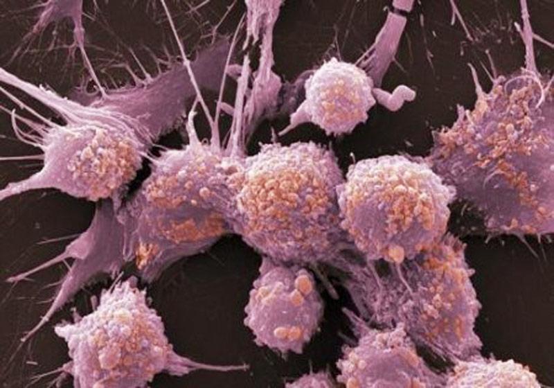 Опухоль предстательной железы проще всего заморозить