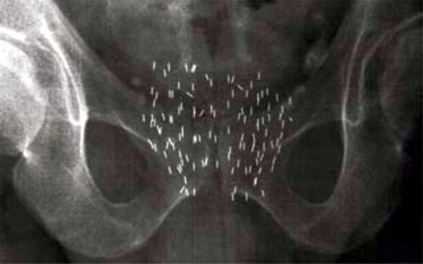 Метастаза рака простаты в горло