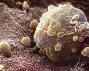 Высокую смертность мужчин от рака объяснили их беспечностью