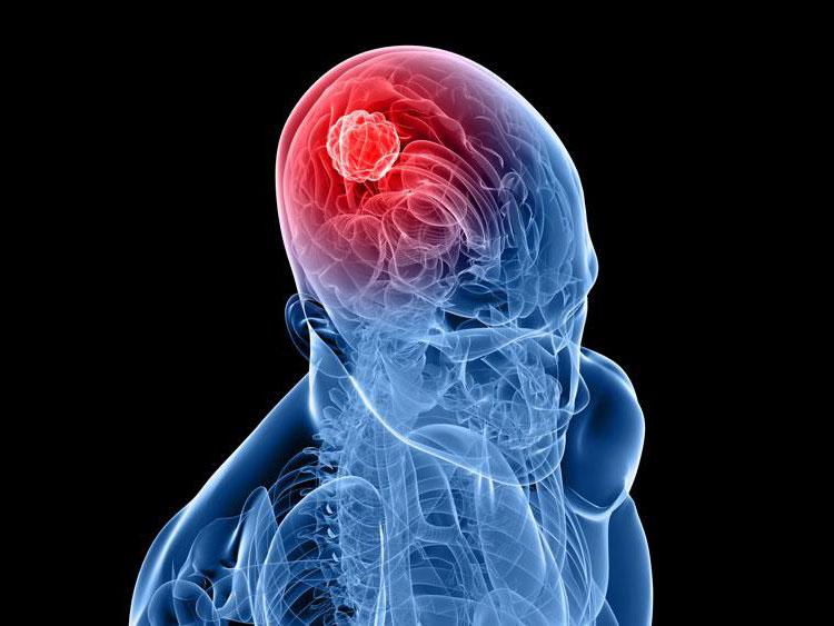 Препарат для лечения опухолей головного мозга