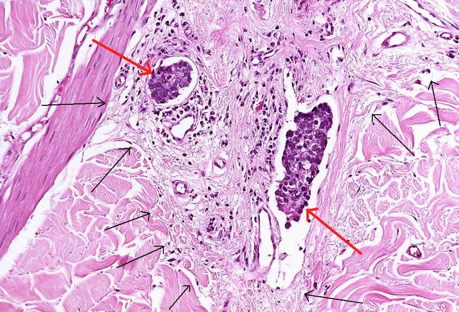 Роль нарушений функций щитовидной железы в генезе злокачественных солидных опухолей: новые данные