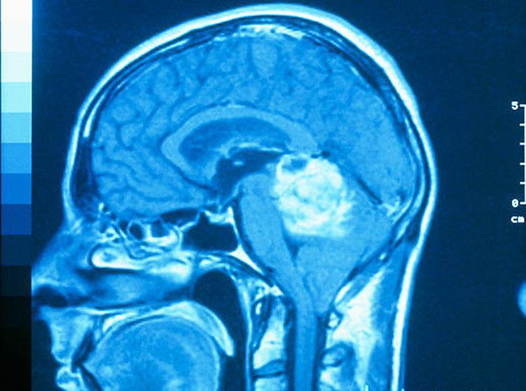 Ученые открыли фермент, ответственный за опухоль мозга