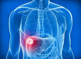 Новые методы в лечении рака печени