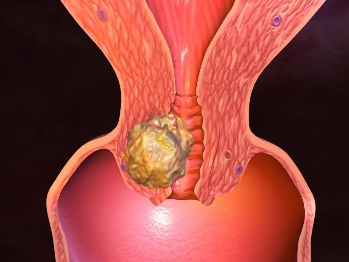 Ученые нашли причину заболевания раком матки у женщин