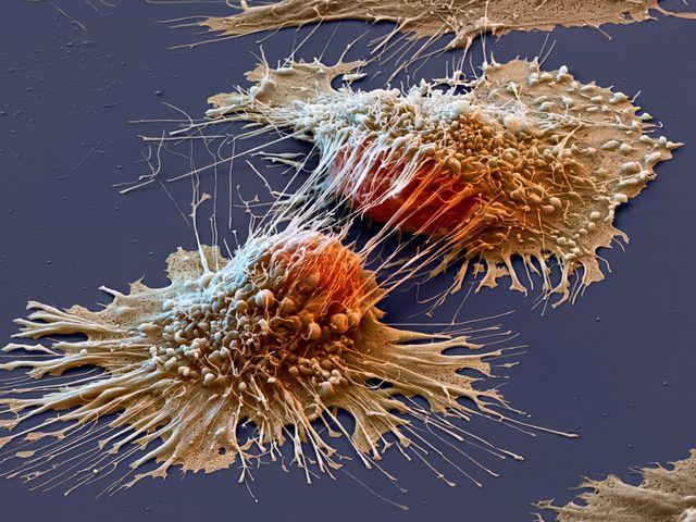 Новый метод поможет вылечить рак, утверждают специалисты