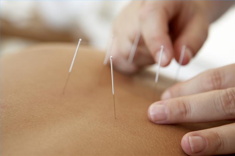 Иглоукалывание уменьшает побочные эффекты противораковой терапии