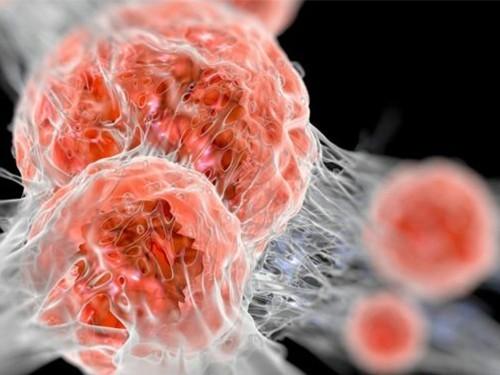 К 2030 году женщины станут умирать от рака на 60% чаще