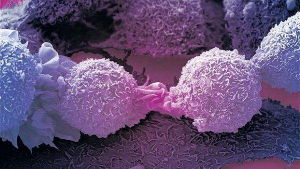 «Погасив» воспалительные белки, можно будет остановить рак