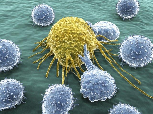 Ученые выявили особенности агрессивных опухолей