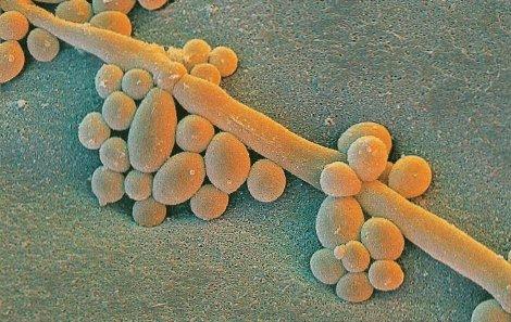Старое средство против грибков способно изменить лицо современной онкологии