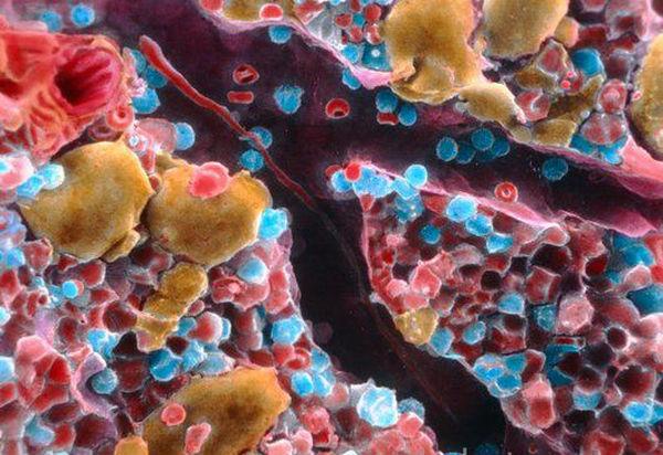 Рак костного мозга можно обнаружить без болезненной биопсии