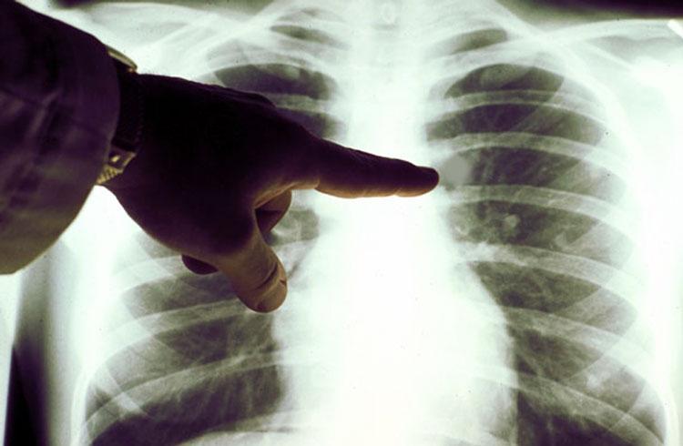 Рак легких можно диагностировать по дыханию