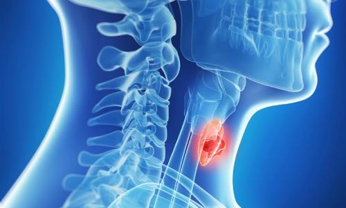 Гормональная терапия при лечении рака щитовидной железы