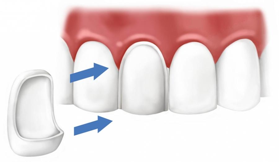 Керамические виниры как надежные помощники в реставрации зубов