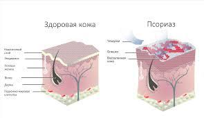 Псориаз. Причины возникновения и методы лечения псориаза