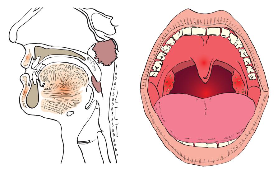 Рак горла. Лечение и диагностика