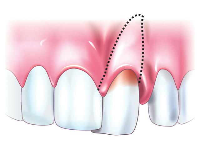 Лечение зубных травм