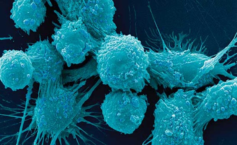 Клетки рака молочной железы можно «открыть» и уничтожить