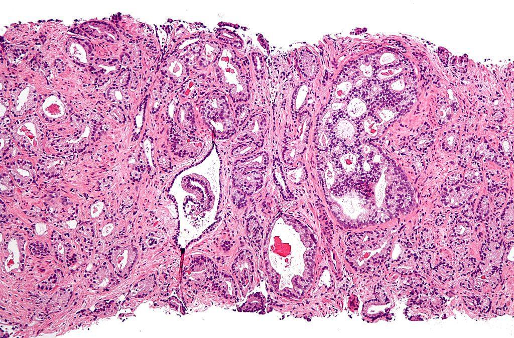 Рано облысевшие мужчины более подвержены развитию рака простаты