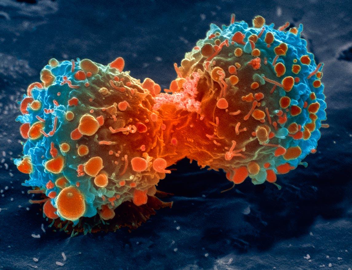 Существование стволовых клеток рака подтвердили ученые