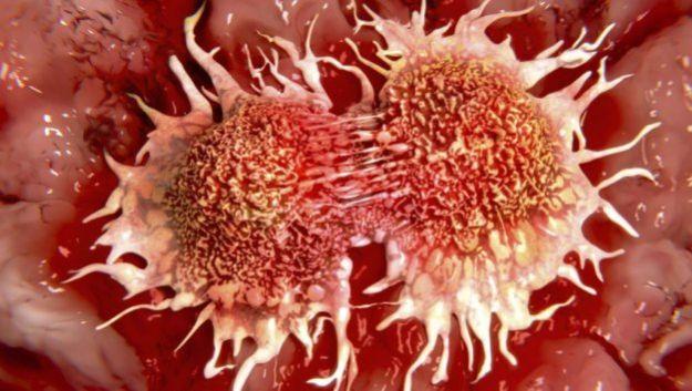 Ученые предложили новый способ борьбы с раком – «блокировать» метастазы