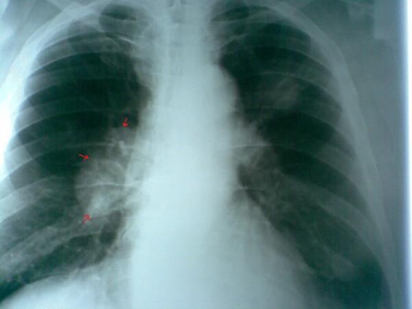 Рак легких можно будет вылечить ингаляциями