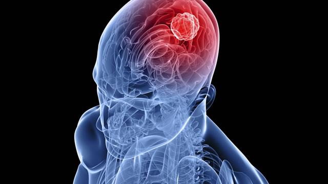 Установлен природный механизм подавления роста опухоли мозга