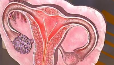 В США одобрен к применению новый противоопухолевый препарат для химиотерапии рака яичника