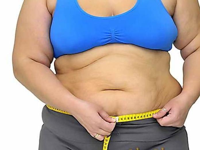 Ожирение повышает вероятность рака пищевода