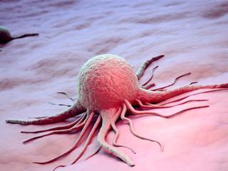 Ученые впервые принудили раковые клетки к самоуничтожению
