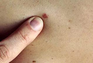 Рак кожи можно будет вылечить с помощью крема