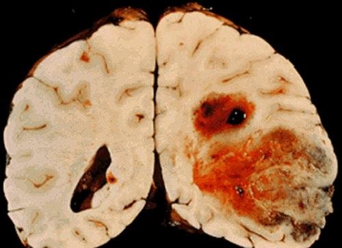Лекарством от алкоголизма можно вылечить рак мозга