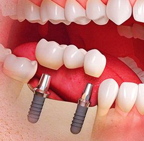 4 главных преимущества для принятия решения в пользу имплантации зубов