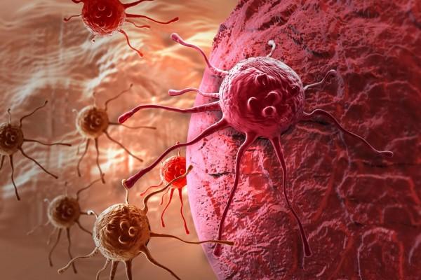 Физическое сжатие злокачественных клеток не дает развиться раку