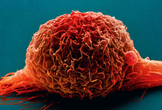 Найдены генетические маркеры рака мочевого пузыря
