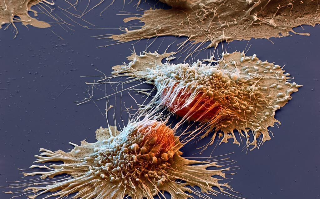 3 способа убежать от рака