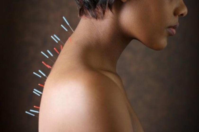 Иглоукалывание облегчит симптомы радиотерапии