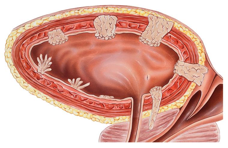Доказан профилактический эффект андрогенной депривационной терапии в отношении внутрипузырного рецидива злокачественных опухолей мочевого пузыря