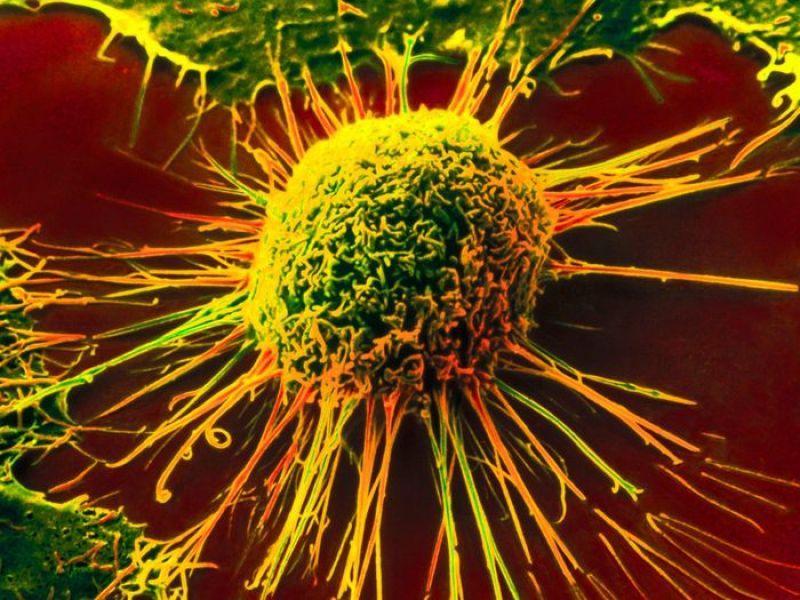 Рак: не смертный приговор