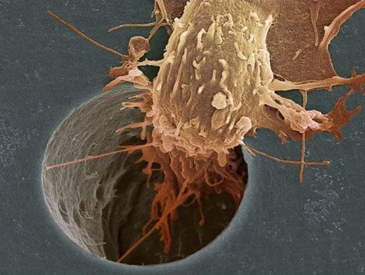 Ученые раскрыли механизм питания опухолей