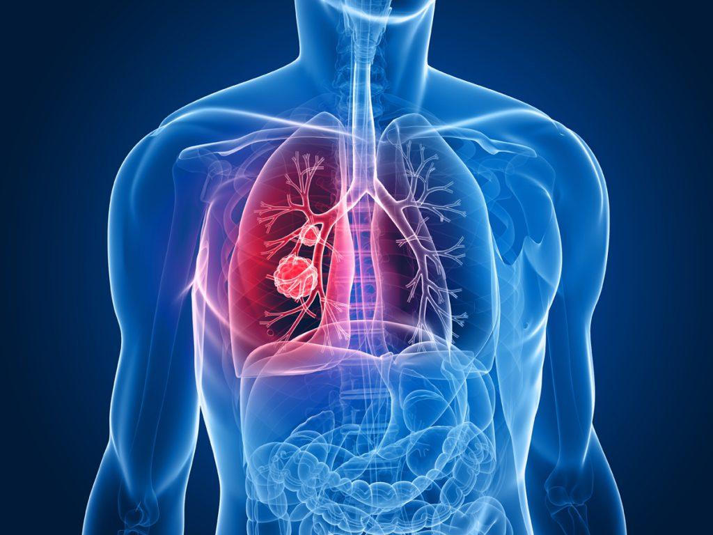 Ученые: переживания повышают риск возникновения онкоболезней
