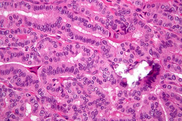 Возраст заболевания раком щитовидной железы как фактор отдаленного риска развития остеопороза и сердечно-сосудистых заболеваний