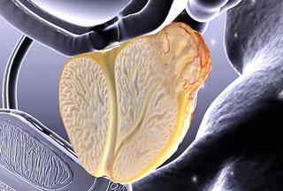 Ученые разработали эффективный метод лечения рака простаты